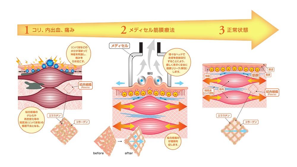 筋膜リリース|下高井戸ヒーリングプラザ
